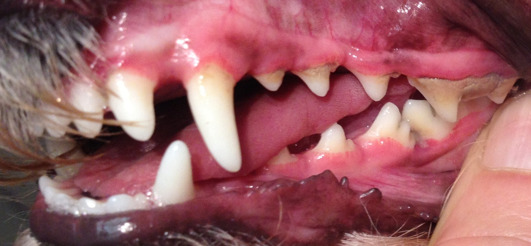 A common area of crowding. Note the increased gingivitis and calculus on molar as a result.