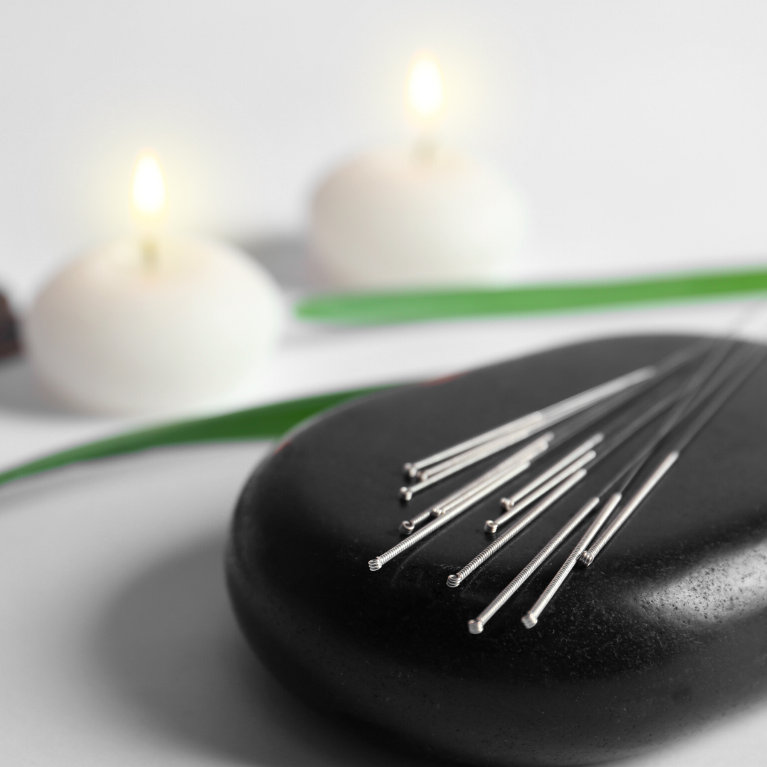 Acupuncture needles in spa setting