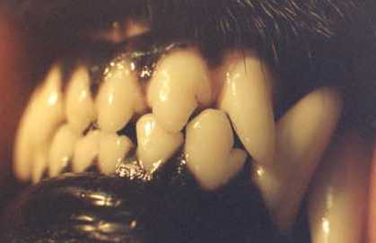 """""""Almost"""" normal but notice the contact of tooth to tooth, eventually will wear away enamel."""