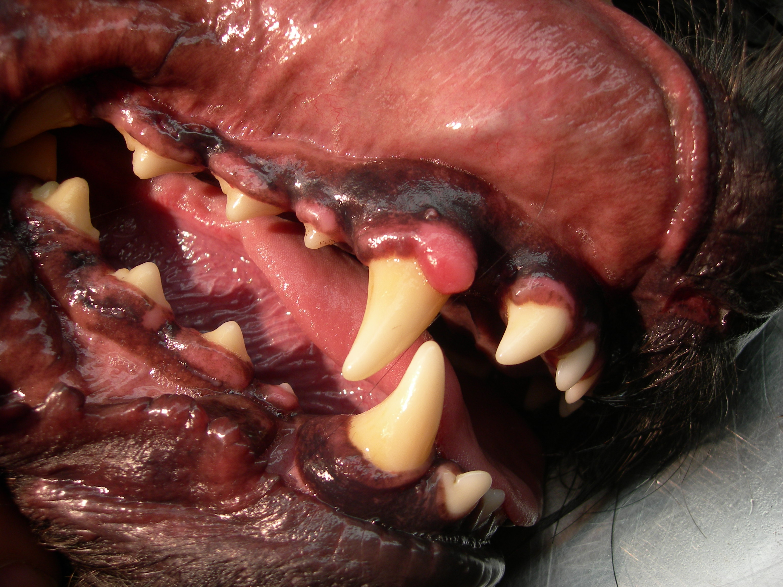 Long term gingivitis can cause excessive gum tissue to grow.
