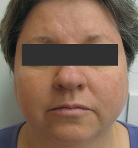 https://0901.nccdn.net/4_2/000/000/038/2d3/rosacea_4-monthly-treat-1-280x300.jpg