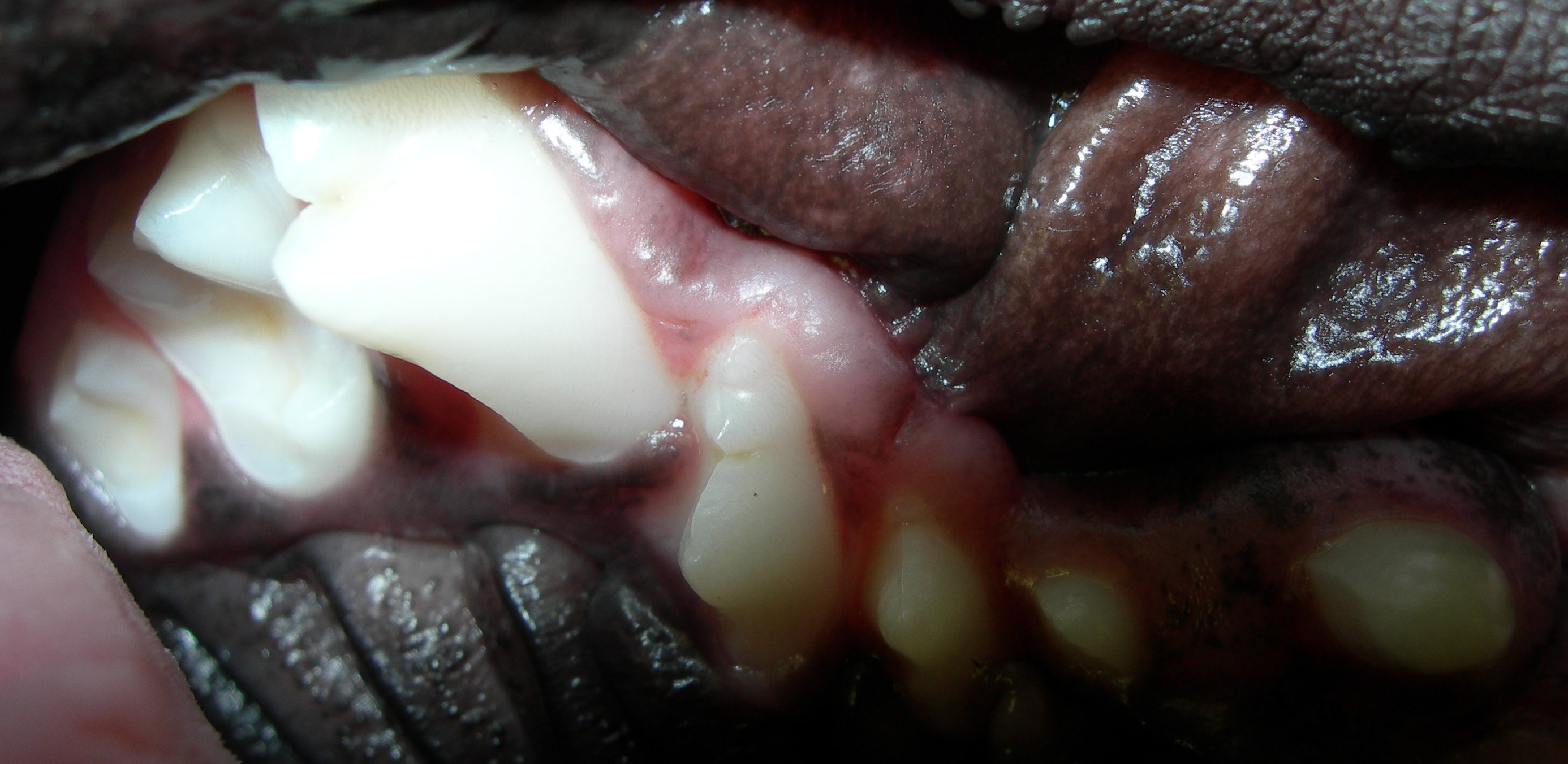 See the contact between the larger and smaller tooth? Both with be lost if nothing is done.