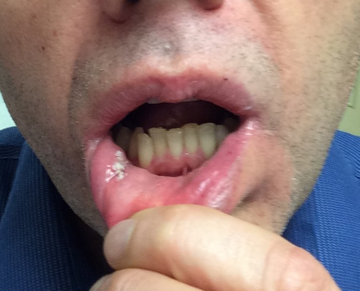 Sometimes crowding is because of an extra tooth! (bad selfy