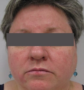 https://0901.nccdn.net/4_2/000/000/053/0e8/rosacea_before-1-280x300.jpg