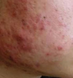 https://0901.nccdn.net/4_2/000/000/064/d40/acne_type1_before-280x300.jpg