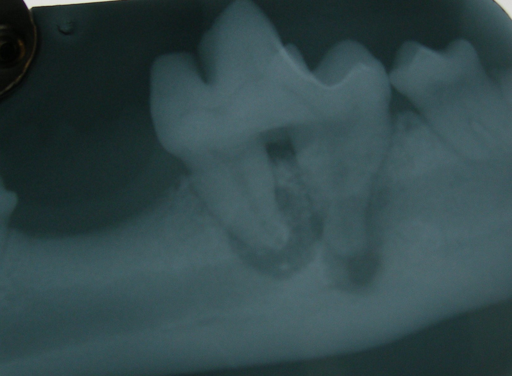 Xray of abcess on molar of lower jaw